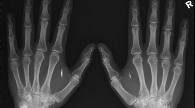 Un hombre se implanta un chip NFC en su propia mano