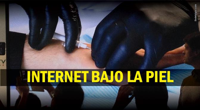 Internet en la mano, gracias a un chip implantado