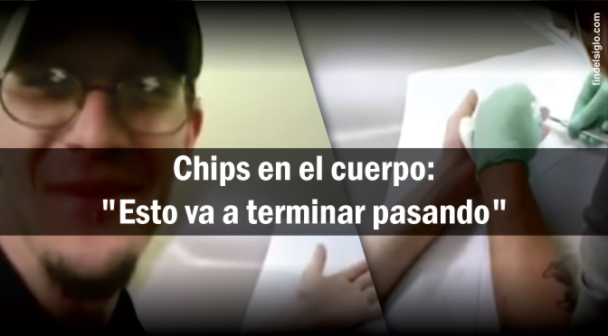 Chips debajo de la piel