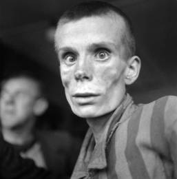 emaciated-prisoner