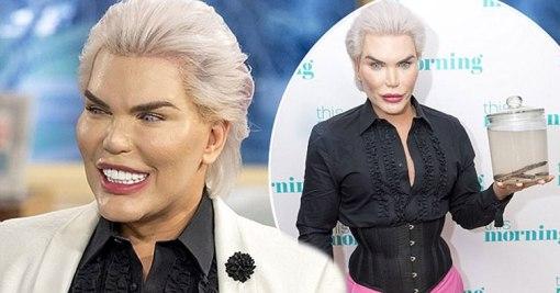 Rodrigo Alvez es un adicto a las cirugías plásticas, gastó miles de dólares para parecerse a Ken, el novio de barbie.