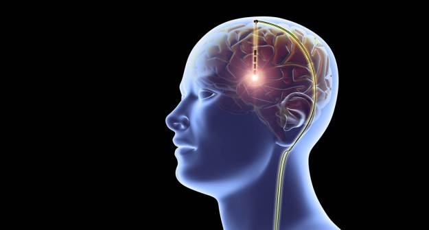 implante memoria